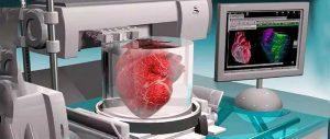 欧盟批准人工心脏投入商用,3D打印心脏未来可期